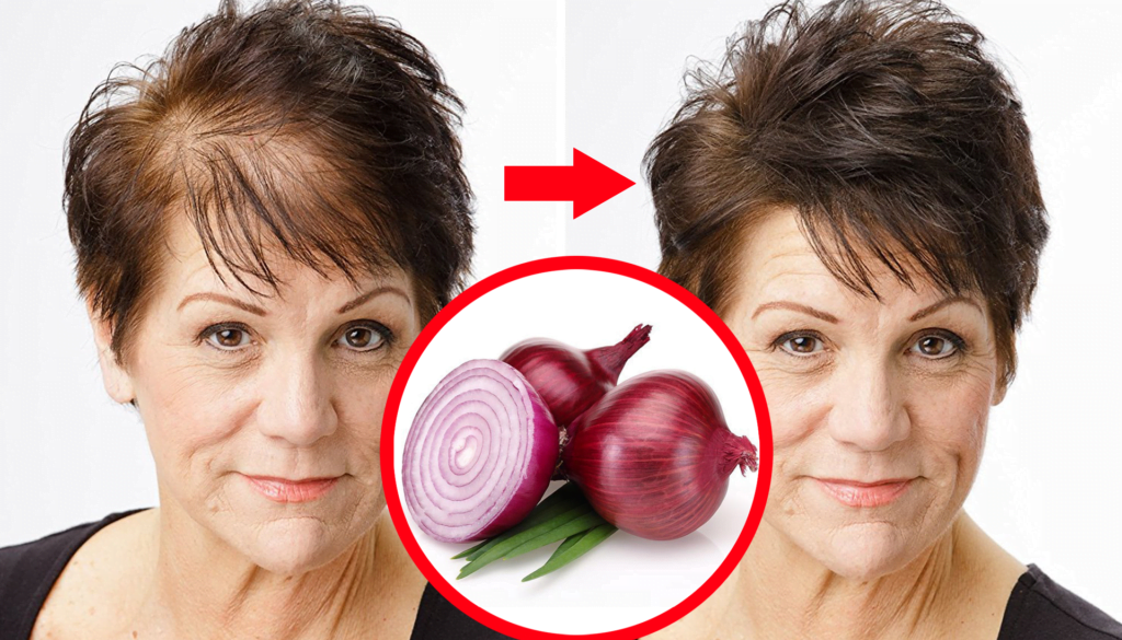 Photo of How To Use Onion Juice For Hair Growth
